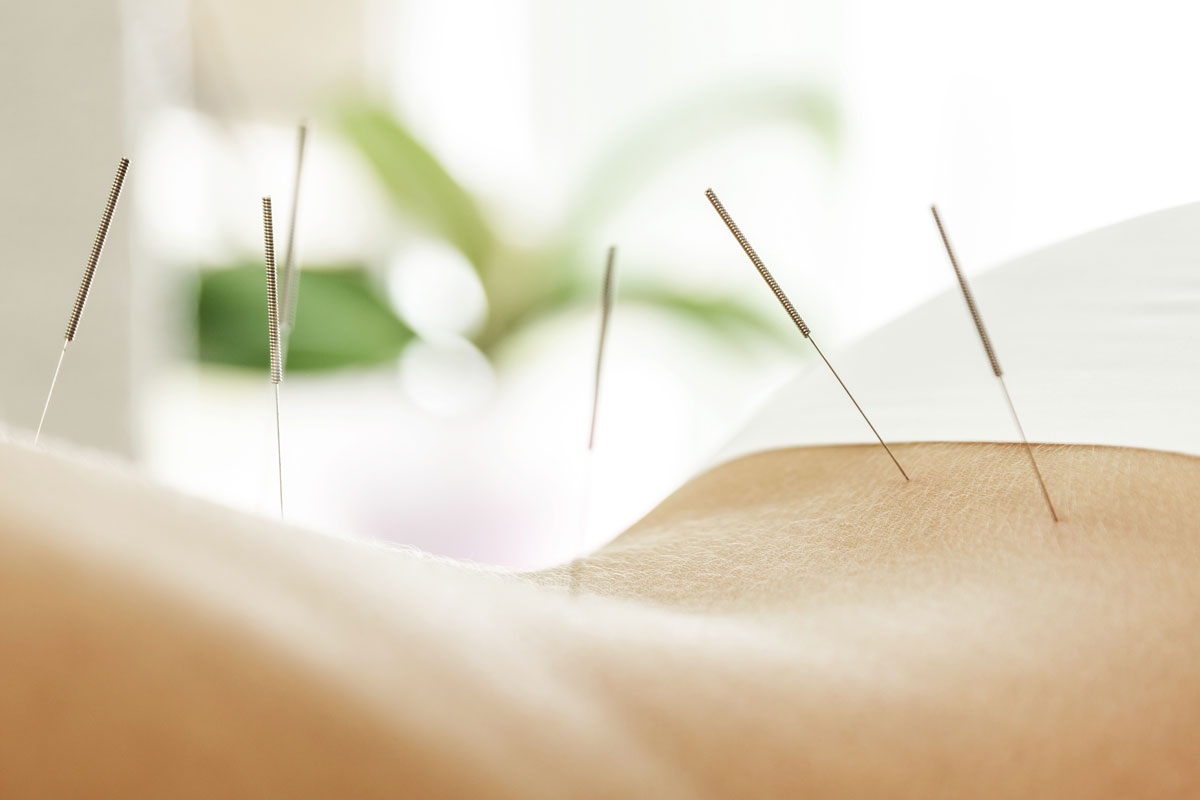 defined health acupunture